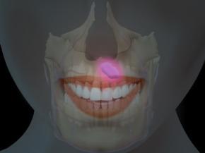 Киста зуба, лечение, симптомы кисты зуба, причины возникновения и последствия кисты зуба, народное лечение