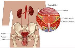 Простатит, лечение, симптомы, диагностика простатита