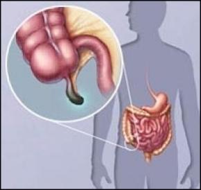 Запалення апендициту викликає особливий вірус