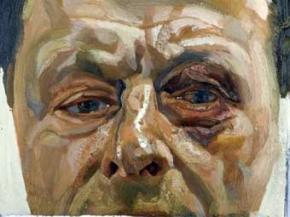 Автопортрет Люсьєна Фрейда з підбитим оком проданий за 2,8 мільйона фунтів