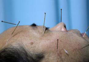 Вчені пояснили процес зняття болю за допомогою голковколювання