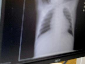 Російські лікарі виявили в серці пацієнтки швейну голку