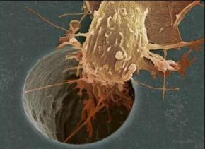 У Ізраїлі створили ліки, що зупиняють розвиток раку