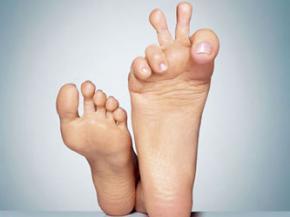 Потіння ніг, як позбавитися від неприємного запаху ніг, пітливості ніг.