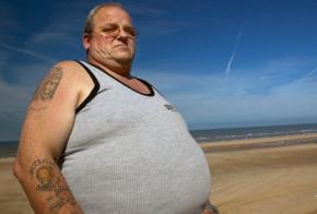 Ожиріння пов'язане з підвищеним ризиком прогресування раку простати