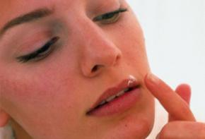 Герпес, лечение и профилактика герпеса, причины возникновения герпеса, лечение герпеса народными методами, герпес на губах и генитальный