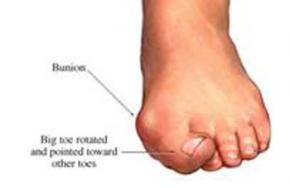 Болить кісточка на нозі, лікування кісточки великого пальця, народне лікування кісточки на ногах. Вальгусна деформація першого пальця стопи ніг