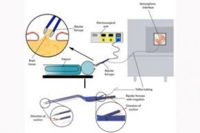 Создан хирургический электроскальпель, который умеет отличать раковые клетки по запаху