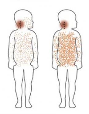 Краснуха, симптомы, лечение, причины, народные методы лечения краснухи