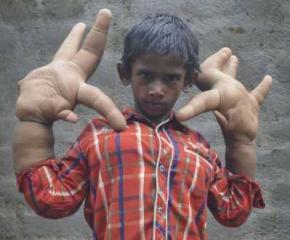 Мальчик с огромными 16-килограммовыми руками поставил врачей в тупик
