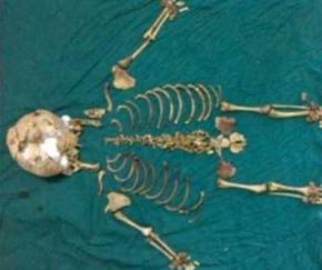 Хирурги обнаружили в пациентке ребенка, умершего почти 40 лет назад