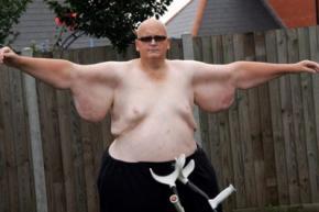 Житель Великобританії схуд на 305 кілограмів заради коханої