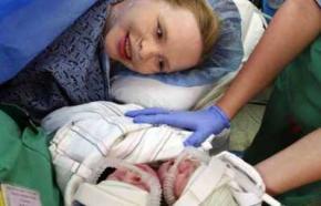 В США родился двухголовый ребенок