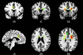 Вчені визначили вплив кохання на мозок
