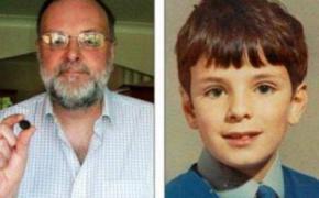 Англичанин 44 года жил с осколком игрушки в носу, даже не подозревая об этом