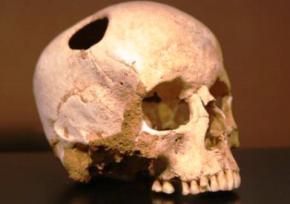П'ять тисяч років тому люди вже вміли проводити операції з трепанації черепа