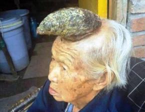 В Китае живет женщина - единорог
