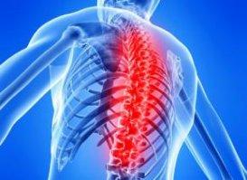 Остеохондроз лікування, симптоми, профілактика, причини, види остеохондрозу